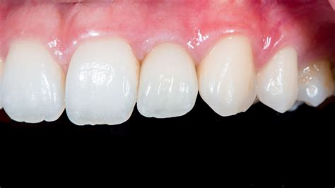 Dental implants: Advantages, Risks and Cost - Webdento